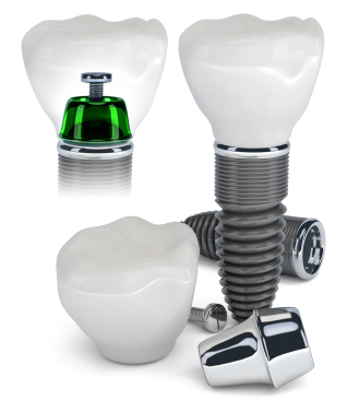 Contraindicatiile implantelor dentare
