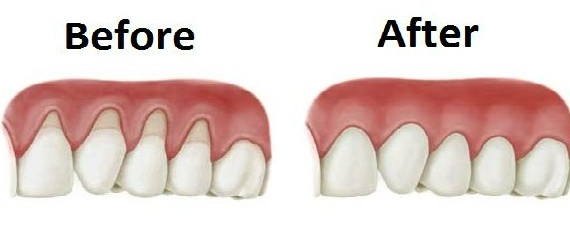 Tratamentul retractiilor gingivale